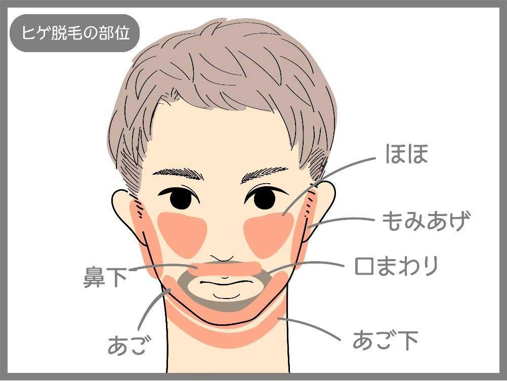 ヒゲ脱毛の部位